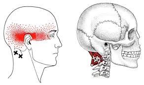 Suboccipital referral pattern causes headaches